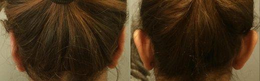 ניתוח הצמדת אוזניים צד אחורי מלא