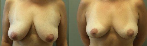 פרונט-3-הרמת חזה לפני ואחרי