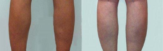 שאיבת שומן ברגליים
