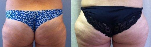 שאיבת-שומן-לפני-ואחרי