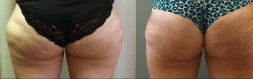 תמונה שאיבת שומן לפני אחרי