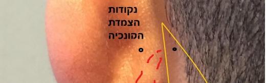 תמונה 2 - נקודות הצמדה לקונכייה
