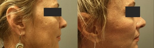 1-ימין-מתיחת פנים פרופיל ניתוח אוזניים
