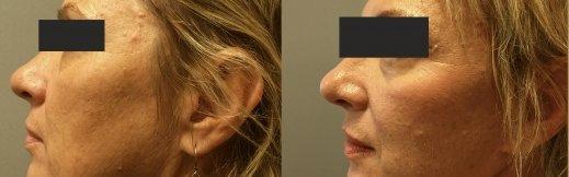 1-שמאל-מתיחת פנים ניתוח אוזניים