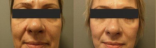 1-פרונט-מתיחת פנים לפני אחרי