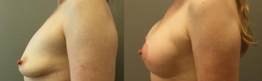 10-שמאל-הרמה והגדלה