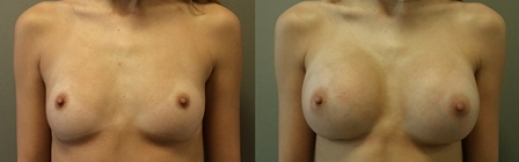 14 - הגדלת חזה לפני ואחרי