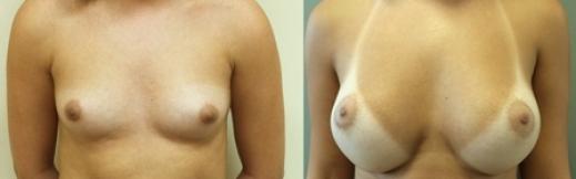 16 - הגדלת חזה לפני ואחרי תמונה