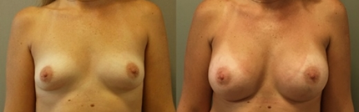תמונה 17 - הגדלת חזה לפני ואחרי