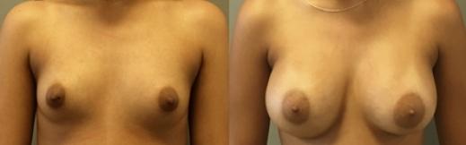 1_3 - הגדלת חזה לפני ואחרי