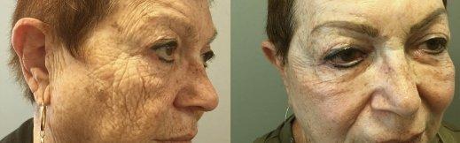 2-ימין-מתיחת פנים לפני ניתוח