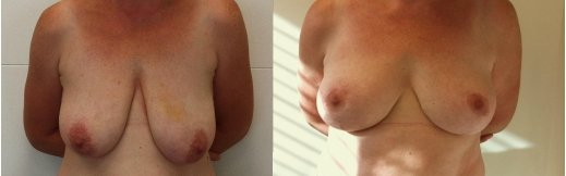 4-הרמת חזה לפני ואחרי