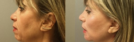 4-ימין-מתיחת פנים לפני ואחרי ניתוח