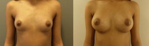 לפני ואחרי 5 - הגדלת חזה