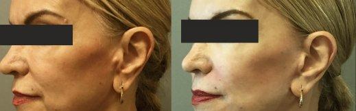 5-מתיחת פנים זוית אלכסונית