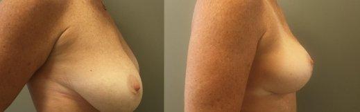 5-ימין-הרמת חזה לפני ואחרי
