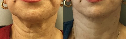 5-מתיחת פנים וצוואר