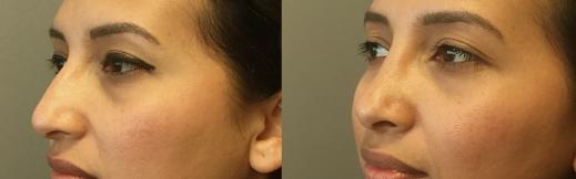 5- ניתוח אף-שמאל אלכסון