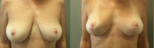 5-פרונט-הרמת חזה לפני ואחרי