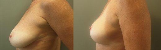 5-שמאל-הרמת חזה לפני ואחרי