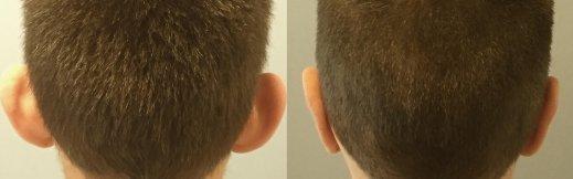 6-ניתוח הצמדת אוזניים - אחורי