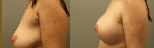 6-שמאל-הרמה והגדלה