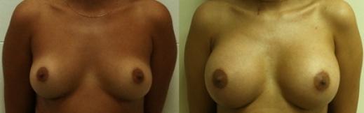 6_1 - הגדלת חזה לפני ואחרי