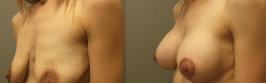 9-שמאל אלכסון-הרמה והגדלה